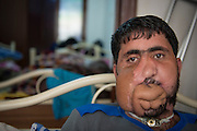 Yussed Al Hussein, 30, member of the Al-Tawhid Brigade, in an improvised hospital in Gaziantep, Turkey. In January 2013, he got hit in Aleppo, he had his face teared apart, he doesn't have a jaw anymore and he breathes from his neck. A proper plastic surgery would costs 250.000 Dollars. His face was restructured by pieces of his arms and legs. He can only eat baby food. He's married and has five children. He fought for three years with the Al-Tawhid Brigade. He doesn't have a passport so he can't go to Europe for surgery and he's on the terror list of four different intelligence agencies.  <br /> <br /> YUSSEF AL HUSSEIN, 30 ANS, MEMBRE FSA (BRIGADE LIWA AL-TAWHID) DANS UN HOPITAL SECRET A GAZIANTEP EN TURQUIE. IL A EU LE VISAGE ARACHE, N A PLUS DE MACHOIRE, RESPIRE PAR LA GORGE. UNE OPERATION ESTHETIQUE COUTE 250.000 DOLLAR. LE VISAGE A ETE RECONSTITUE PAR DES MORVCEUX DE JAMBE ET BRAS. MAMGE QUE DU BABY FOOD. EST MARIE ET A 5 ENFANTS. JANVIER 2013 : TOUCHE A ALEP. IL A COMBATTU PENDANT 3 ANS DANS AL-TAWHID. SANS PASSEPORT, EST RECHERCHE PAR 4 SERVICES DE RENSEIGNEMENT CAR ACCUSE DE TERRORISME.
