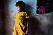 Neha, 7, is standing in the entrance of her home in Indira Nagar, near the abandoned Union Carbide (now DOW Chemical) industrial complex in Bhopal, Madhya Pradeh, central India, site of the infamous 1984 gas tragedy. Neha was born blind, suffering from a neurological disorder, and due to the insufficient care she regularly receives, she developed an eyes and skin infection, and severe malnutrition. Neha shares a single room with no windows with three sisters and one younger brother: Bushra, 14, a girl affected by down syndrome, Nisha, 12, Fiza, 17 and Sohel, 9. Their father left their home in September 2013 and never contacted them anymore; their mother died in 2011. In 1984 she survived the poisonous gas cloud that enveloped Bhopal, leaving everlasting consequences that today continue to consume people's lives.