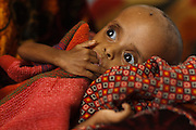 A child suffering from acute malnutrition sucks on his fingers at the UNICEF-sponsored Mao therapeutic feeding center in the town of Mao, Kanem region, Chad on Monday February 13, 2012.