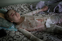 Ukraina<br /> <br /> Artem, 7 år, ligger brännskadad på ett sjukhus i Donetsk. Han har tredje gradens brännskador på 60 procent av kroppen efter att en stridsvagn exploderat nära honom och hans kusin. Kusinen Xantia, 9 år, dog på platsen. <br /> Artems pappa Alexander vakar över sin son.<br /> <br /> Photo: Niclas Hammarström