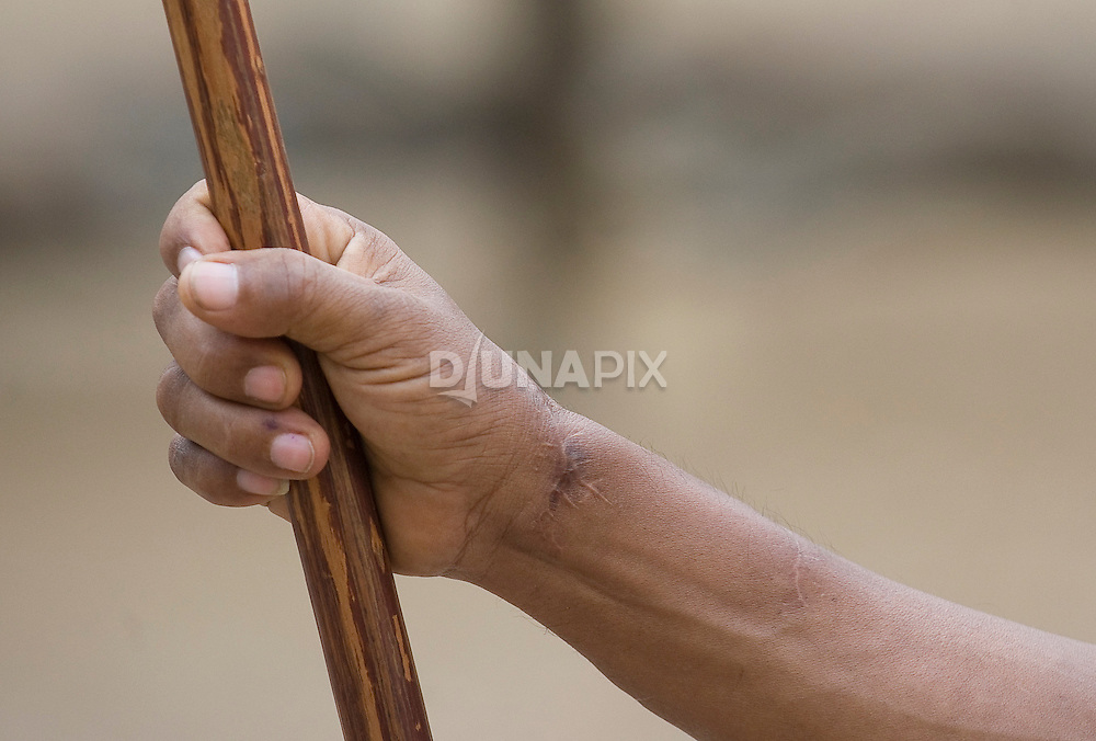 Komodo dragon bite scars on a park ranger's arm.