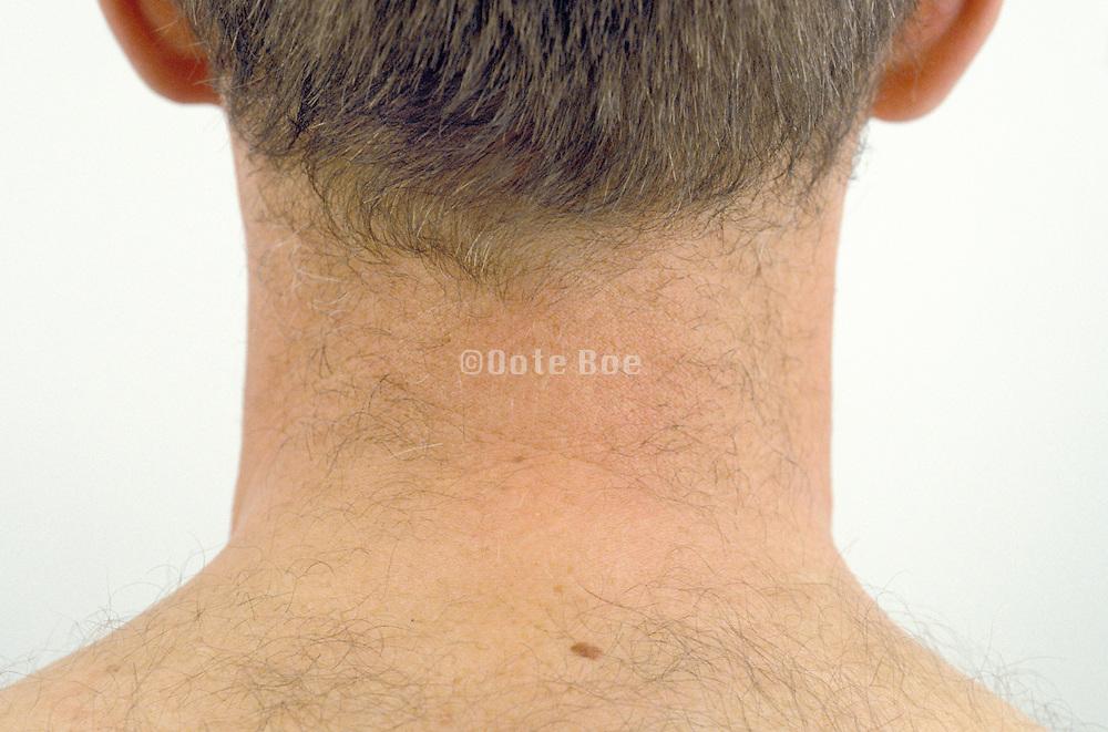 back of a man's neck