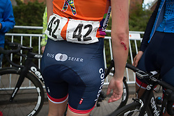 Christina Siggaard (DEN) of Veloconcept Team receives medical assistance after  Stage 4 of the Healthy Ageing Tour - a 126.6 km road race, starting and finishing in Finsterwolde on April 8, 2017, in Groeningen, Netherlands.