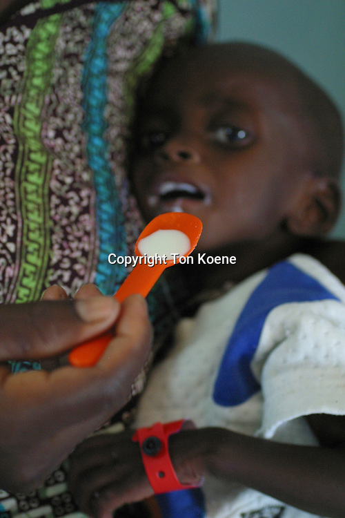 malnourished child in a clinic during the famine in 2008, nigeria