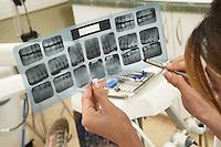 Dentist Examining X-rays