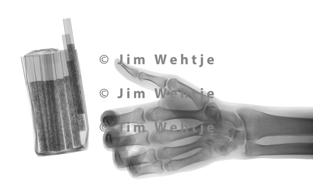 X-ray image of cigarettes and hand (black on white) by Jim Wehtje, specialist in x-ray art and design images.