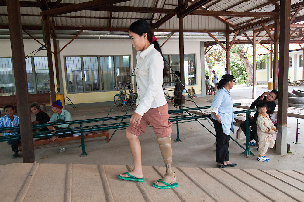 Amputees in rehab at the International Committee of the Red Cross (ICRC) centre in Battambang city.  The woman pictured is, Lan Sarum, who lost her leg to landmine in 1990 in Banteay Meanchey Province she as receiving her  5th prosthetic new leg.  The ICRC centre has treated 18,122 cases from 1991 - 2010, most of them amputees.