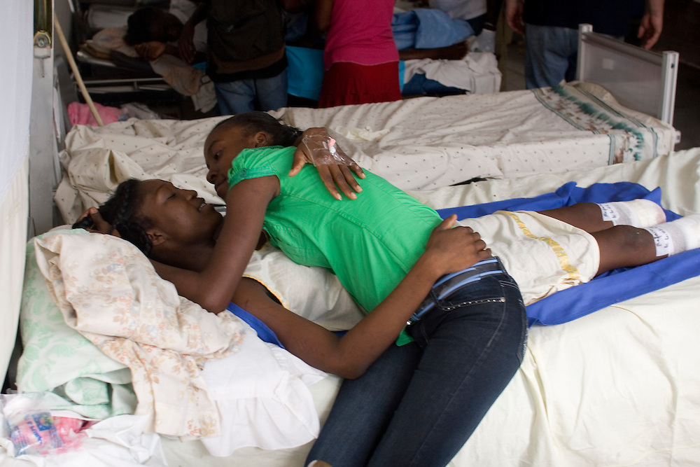 Mana Alexan, 22 years old, lost in her legs in the 7.0 earthquake that hit Port-au-Prince, Haiti on Jan. 31, 2010.