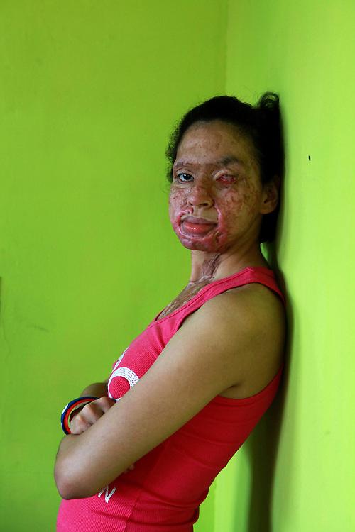 SANTO DOMINGO (REP&Uacute;BLICA DOMINICANA), 30/09/11.- <br /> Isabel Tav&aacute;rez, 19 a&ntilde;os, fue quemada con &aacute;cido en su rostro el d&iacute;a 29 de febrero del 2011, por un hombre que la atac&oacute; desde una motocicleta mientras caminaba junto a una prima.<br /> Isabel, que perdi&oacute; su ojo izquierdo, sufri&oacute; lesiones en el ojo derecho, en su pecho y brazos, hab&iacute;a recibido varias amenazas por Facebook antes del ataque.<br /> En Rep&uacute;blica Dominicana, existe un producto conocido popularmente como Acido del Diablo&rdquo;, el cual es una sustancia que contiene los productos destinados a destapar ba&ntilde;os y tuber&iacute;as dom&eacute;sticas, y que se genera por la combinaci&oacute;n de sustancias qu&iacute;micas, las cuales son mezcladas con az&uacute;car o miel, con el objetivo de causar un da&ntilde;o mayor a las v&iacute;ctimas.<br /> El denominado &ldquo;&aacute;cido del diablo&rdquo; es usado mayormente en los barrios marginados del pa&iacute;s, como arma criminal contra quienes se consideran enemigos de la v&iacute;ctima, generalmente por enfrentamientos pasionales, deudas de dinero y venganzas.<br /> Seg&uacute;n datos oficiales, el 14% de los pacientes atendidos en la Unidad de Quemados del Hospital Eduardo Aybar, (centro especializado en la capital dominicana), son v&iacute;ctimas del Acido del Diablo.<br /> EFE/Orlando Barr&iacute;a