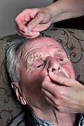 wet eye dripping of elderly man by nurse