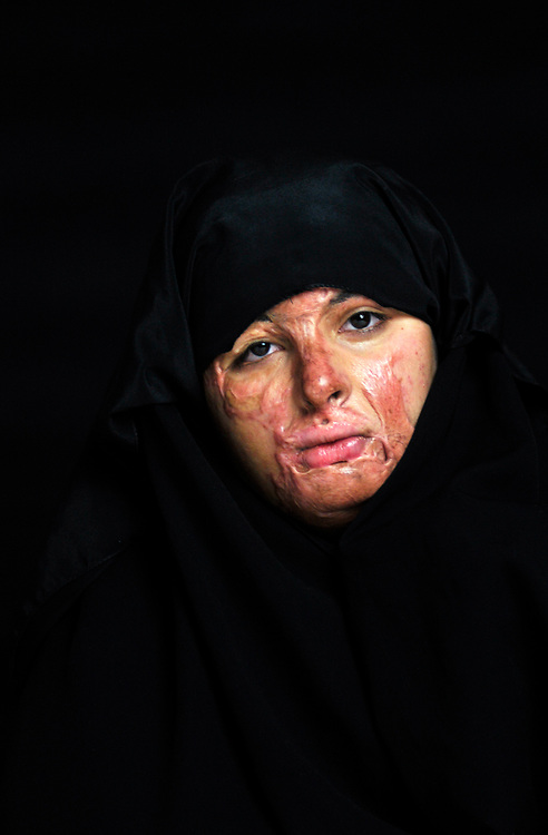 Haneen Mohammed Abdullah, 19 years old, from Baghdad, was severely burned on her face, chest, arms and hands in 2009 when  bomb exploded as she jumped out of her family's car in front of a well known ice cream parlor to buy some ice cream.<br /> Amman, Jordan. 02/12/2011.