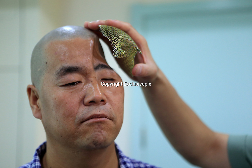 XI\'AN, CHINA - AUGUST 27: (CHINA OUT) <br /> <br /> 3D-Printed Skull <br /> <br /> Mr. Hu is seen at Xijing hospital on August 27, 2014 in Xi'an, Shaanxi Province of China. 46-year-old Hu fell from the third floor at home in last year, he survived but a part of his skull was smashed. The hospital will produce his skull with 3D printing technology.<br /> ©Exclusivepix
