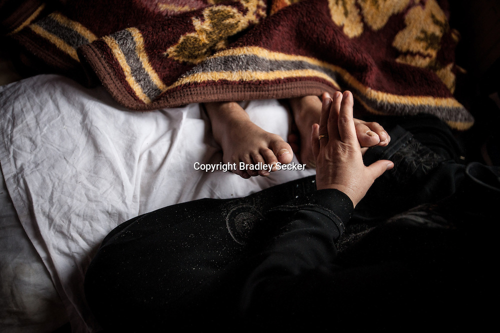 12 year old Maysa Ziadeh's paralysed feet are massaged by her mother's hands in the hope that it might bring some sensation back. After being injured, Maysa had to be hidden in a cave for a month before being able to arrive in Turkey, and receive medical treatment. She was injured by schrapnel in Idlib province, Syria. 1/8/2013 Bradley Secker for the Washington Post