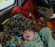 Baby born with Half a head  *Mobile phone images*<br /> <br /> Eyes wide open, tongue out and head back when a baby girl was born with half a head so it became the subject of discussion. As news spread in the village of abnormal birth of the girl people flocked to see him. Some villagers feel girl as a form of devil and receive blessing . The newborn died two hours later and Immersed her in villagers river. <br />  <br /> Mkauni village eight kilometers from the district headquarters on Sunday morning from 8:16am on dual Mahesh Bharti dual-wife gave birth to a baby girl. It was unusual girl. <br /> Then Matadin crowd of villagers gathered outside the house The news spread around the entire village. Village Karry, Ktula, Rajapur village and the surrounding countryside began to arrive to see the newborn. The newborn died around 10 pm. <br /> <br /> Neonatal death after her body was placed in a seated position on the chair. From surrounding villages to see the newborn every day people continued to arrive.<br /> ©Exclusivepix