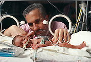 A Premature Baby at Mount Sinai Medical Hospital.
