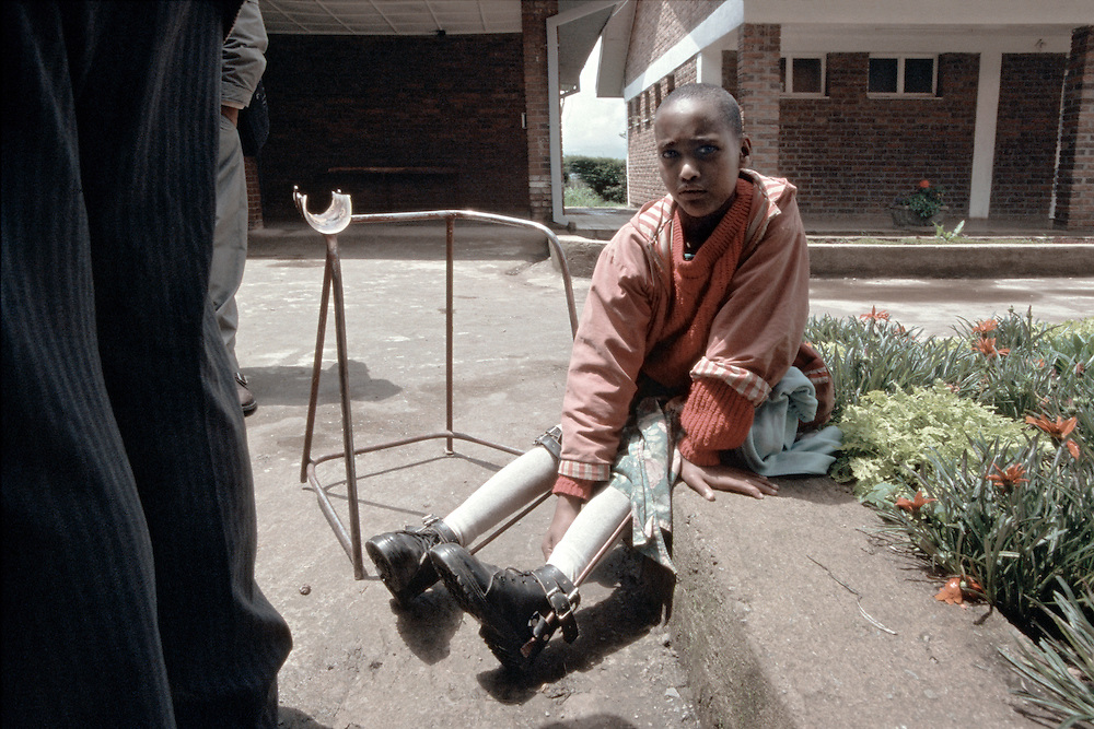 A child with braces on her legs at the Cheshire Rehabilitation Centre in Menagesha, Ethiopia.