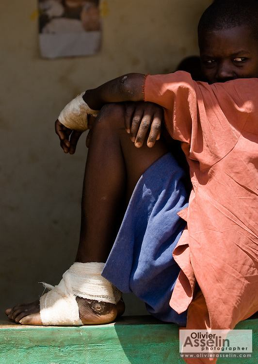 A boy with suffering from guinea worm sits at the guinea worm case containment center in Savelugu, northern Ghana, on Friday March 9, 2007. A parasite transmitted through water, guinea worm emerges from the host's body nine months after drinking contaminated water. Measuring up to 1 meter, it can only be pulled out a few cm every day to prevent it from breaking inside the host's body. Despite a widespread eradication program Ghana has the second largest number of cases in the world - after Sudan..