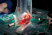 Nederland, Nijmegen, 9-1-2008Chirurgen hebben zojuist een donornier geprepareerd en in een zak gestopt zodat hij vervoerd kan worden naar een ontvanger van het orgaan.Foto: Flip Franssen