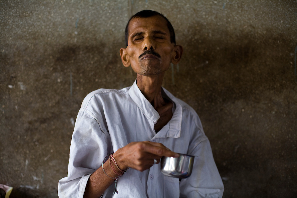 A patient at the Group of TB Hospitals in Mumbai, India takes his daily medicine.