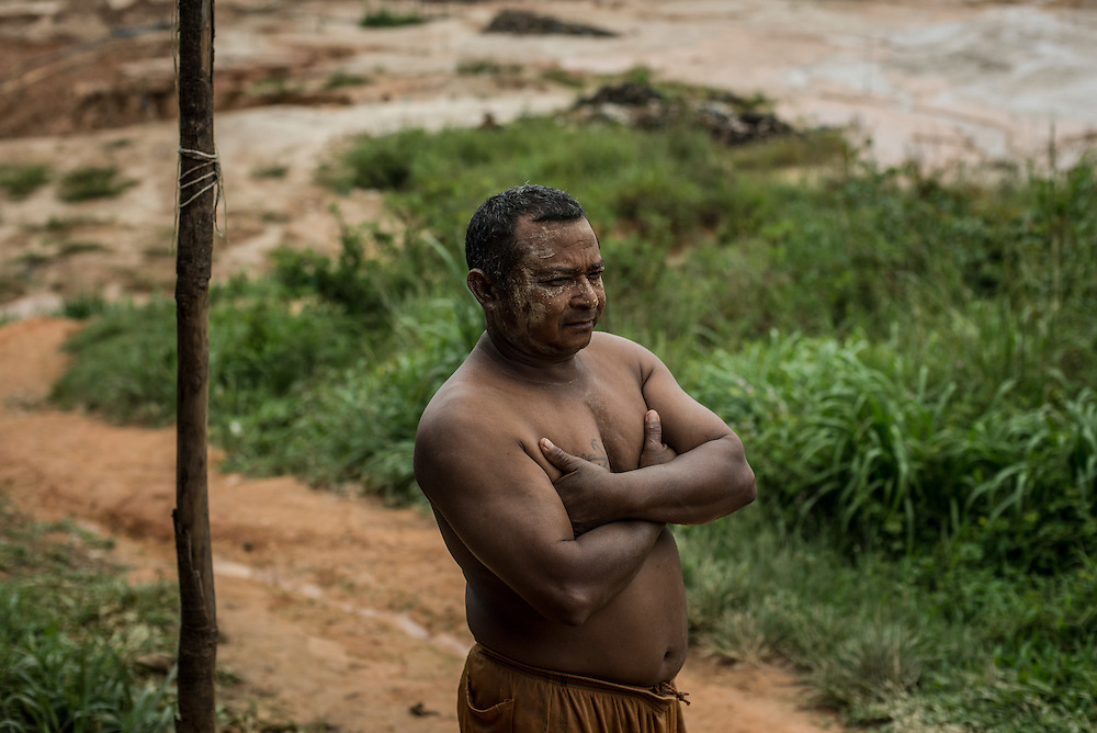 LAS CLARITAS, VENEZUELA - MAY 26, 2016:  Illegal gold miner, Oscar Leal, poses for a portrait outside in the Albino mine outside of Las Claritas, Venezuela.  Mr. Leal has contracted malaria 7 times. Thousands of Venezuelans are flocking to illegal gold mines like this one in hopes of surviving the current economic crisis by earning in gold instead of the national currency, whose value steadily falls due to the world's highest inflation.  From this remote part of the jungle the migrant miners have become the vectors of a new epidemic of malaria, because the hot, swampy conditions of the mines make for an ideal breeding ground for mosquitos. Miners spread the disease as they return home with earnings or pay visits to family members.  The economic crisis has also left the government without the financial resources to control the disease - they are unable to fumigate homes, provide medicines to everyone that is sick, or even to test all patients with symptoms of malaria in many places. PHOTO: Meridith Kohut for The New York Times