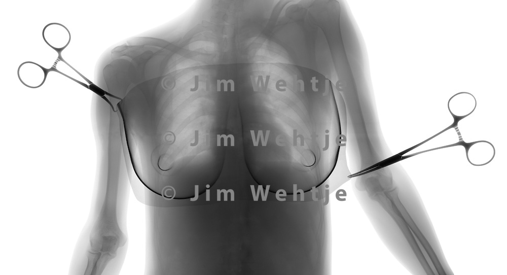 X-ray image of breast surgery (black on white) by Jim Wehtje, specialist in x-ray art and design images.