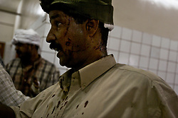A man waits in the hospital after being injured at the Canal Hotel where a cement truck packed with explosives detonated outside the UN offices killing 20 people and devastating the facility in Baghdad, Iraq on Aug. 19, 2003.  This was an unprecedented suicide attack against the world body with at least 100 people wounded.
