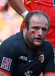 Blood runs from a nasty cut opened up under the eye of William Servat caused by a knee to the face. Stade Toulousain v Perpignan (USAP), Top 14, Stade Municipal, Toulouse, France, 23rd October 2010