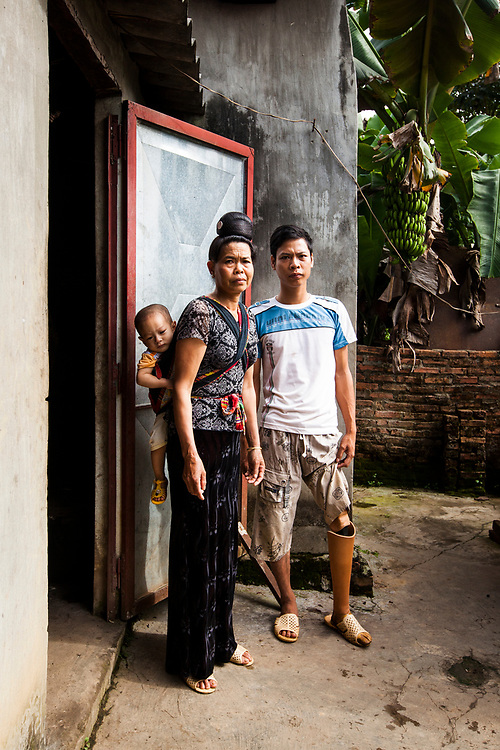 An amputee in Son La, Vietnam with his mother and sibling. Lo Van Tan lost his leg a few years ago in an accident at a brick factory in his home village. His prosthetic leg was donated by POF, the Prosthetic Outreach Foundation, which operates within Vietnam.