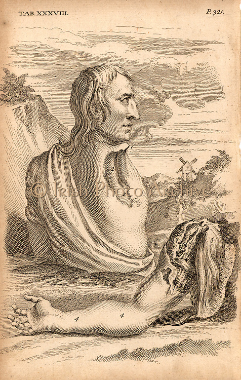 The miller Samuel Wood, whose arm and scapula were torn off when entangled in a rope attached to the moving mill machinery (1737). There was very little bleeding, and the amount of skin left was enough to cover the wound.  A superficial dressing was applied and healing took place without complications. The author advises always leaving a similar area of skin when performng an amputation.  From 'The Anatomy of the Human Body' by William Cheselden (London, c1745). First edition published 1713. Engraving.