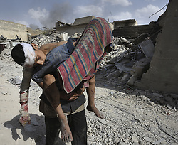 July 2, 2017 - Mosul, Iraq - A man carries an injured child in brutal heat until finding a vehicle to transport the injured to the team from Global Response Management stabilization point near the Old City.  Civilians, many injured and weak, flee the continued battle with ISIS in West Mosul amid ruins of the city. (Credit Image: © Carol Guzy/zReportage.com via ZUMA Wire)