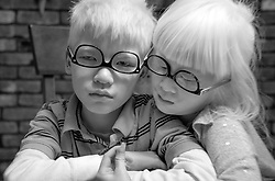 Forest Hoben is comforted by his sister Lotus after having his first big meltdown from missing his friends while social distancing during the coronavirus pandemic in the Hudson Valley, New York. Forest and Lotus Hoben, ages 10 and 6, were adopted from China and have albinism, a rare group of genetic disorders that cause the skin, hair, or eyes to have little or no color. Albinism is also associated with vision problems. According to the National Organization for Albinism and Hypopigmentation, about 1 in 18,000 to 20,000 people in the United States have a form of albinism.