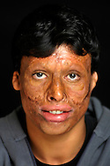 Qasim Mohammed, 19 years old, from Basra, was severely burned on his face in 2006 on his way to school one morning when a suicide car bomb exploded next to the school bus he was riding on..Amman, Jordan. 01/12/2011..Photo © J.B. Russell