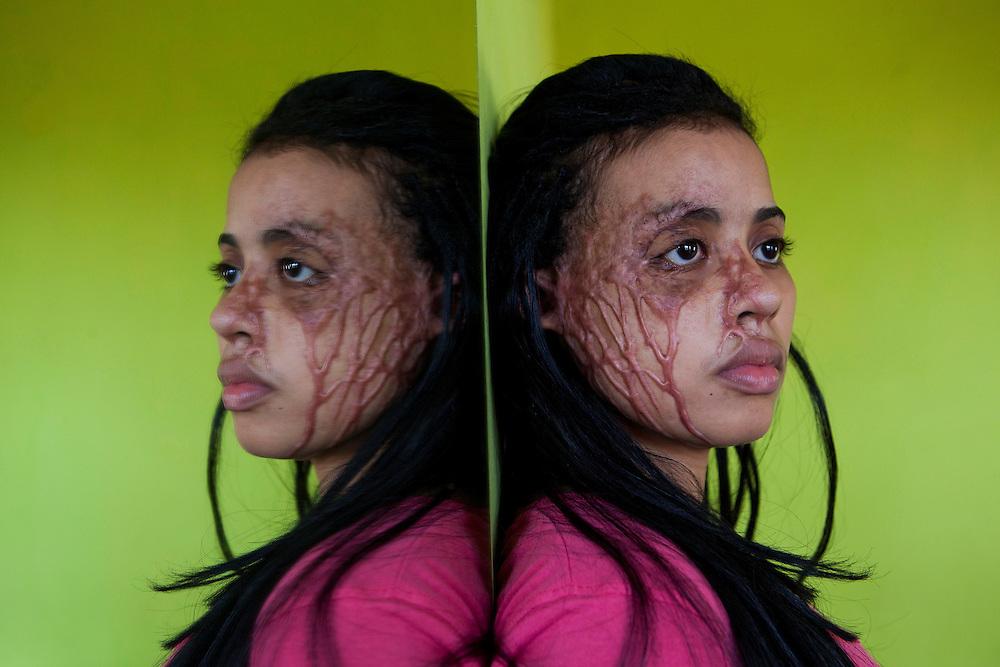 SANTO DOMINGO (REP&Uacute;BLICA DOMINICANA), 30/09/11.- <br /> Alba Lidia de Jes&uacute;s P&eacute;rez, 23 a&ntilde;os, fue quemada con &aacute;cido en su rostro el d&iacute;a 29 de febrero del 2011, por un hombre que la atac&oacute; dsede una motocicleta, mientras caminaba junto a una prima.<br /> Alba Lidia, sufri&oacute; lesiones en el ojo derecho, rostro, brazos y a quedado con profundas marcas en su rostro.<br /> En Rep&uacute;blica Dominicana, existe un producto conocido popularmente como Acido del Diablo&rdquo;, el cual es una sustancia que contiene los productos destinados a destapar ba&ntilde;os y tuber&iacute;as dom&eacute;sticas, y que se genera por la combinaci&oacute;n de sustancias qu&iacute;micas, las cuales son mezcladas con az&uacute;car o miel, con el objetivo de causar un da&ntilde;o mayor a las v&iacute;ctimas.<br /> El denominado &ldquo;&aacute;cido del diablo&rdquo; es usado mayormente en los barrios marginados del pa&iacute;s, como arma criminal contra quienes se consideran enemigos de la v&iacute;ctima, generalmente por enfrentamientos pasionales, deudas de dinero y venganzas.<br /> Seg&uacute;n datos oficiales, el 14% de los pacientes atendidos en la Unidad de Quemados del Hospital Eduardo Aybar, (centro especializado en la capital dominicana), son v&iacute;ctimas del Acido del Diablo.<br /> EFE/Orlando Barr&iacute;a