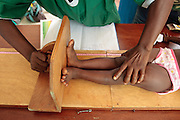 A girl is measured at the Pipeline health center in Monrovia, Montserrado county, Liberia on Monday April 2, 2012.