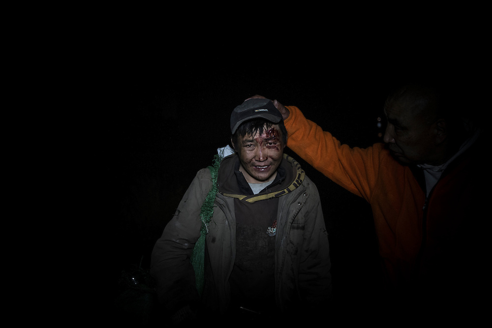 Homeless man after a fight for food from a garbage bin, in the streets of Ulan Bator