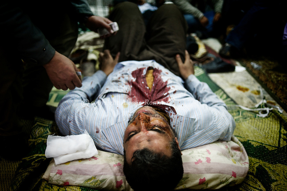 A wounded demonstrator anti- Mubarak during clashes in Tahrir square get first aid in a mosque in Cairo on February 2, 2010.© ALESSIO ROMENZI