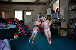 Four-year-old craniopagus twins Tatiana and Krista Hogan are seen in their home in Vernon, British Columbia, Canada, Feb. 26, 2011. The twins, born Oct. 25, 2006 to parents Felicia Simms and Brendan Hogan, are connected at the head and share a brain.  Neurologists say the twins are the only such set that have a common neurological connection.