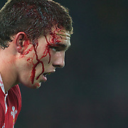 A blooded George North, Wales, during the Australia V Wales Bronze Final match at the IRB Rugby World Cup tournament, Auckland, New Zealand. 21st October 2011. Photo Tim Clayton...