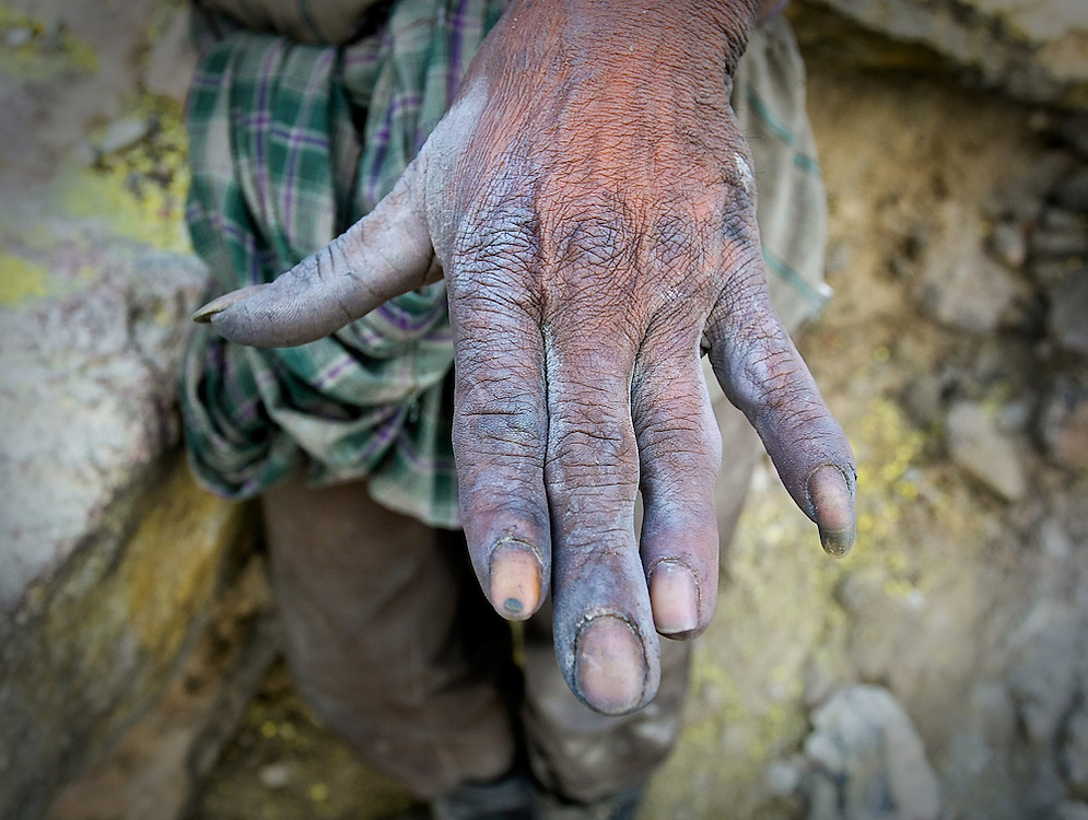 A mineworker's hand after working twenty-five years. (East Java, Indonesia).
