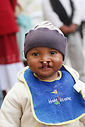 No. 23, Tafitasoa Lahatun Anjaratiana, BCL, bilateral cleft lip, male, 1 year old, before..Operation Smile South Africa.Operation Smile Mission to Hospital Joseph Ravoanangy Andrianavalona,.Antananarivo, Madagascar. September 17th - 29th 2011..© Operation Smile Photo / Zute & Demelza Lightfoot.www.lightfootphoto.com