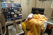 An elderly patient undergoes Hemodialysis (a blood purifying treatment.) in the Renal unit at St Bartholomews (Barts) Hospital in Smithfield, The City of London, England. The woman is laying back in a comfortable armchair with her right arm flat on a cushion and the tubes that feeds her blood by vascular access from her body into the the dialyzer, a machine that filters the unpurified blood due to the patient's renal (kidney) failure. It is a bright room and many other machines are operating in this manner. Three quarters of the UK's 19,000 dialysis patients receive haemodialysis rather than Peritoneal dialysis, where a sterile solution containing minerals and glucose is run through a tube straight into the intestine.
