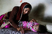 Shabana, 30, is deep in thoughts while looking after her young disabled daughter, Sufiya, one and a half years old, while lying on a bed inside their home in Kabar Kana, Bhopal, Madhya Pradesh, central India, site of the infamous 1984 gas tragedy. Sufiya is Shabana's first child and the family is now scared of considering further pregnancies. Sufiya suffers from a neurological disorder causing severe seizures and slow development. She is not able to eat or swallow food naturally, and is surviving only on water and milk. As a toddler, in 1984 Shabana survived the poisonous gas cloud that enveloped Bhopal, leaving everlasting consequences that today continue to consume people's lives.