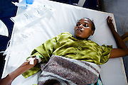 A woman suffering from cholera lies on a bed at the Virunga cholera treament center in Goma, Eastern Democratic of Congo on Monday December 15, 2008. Mungwiko is the second of eight siblings to be infected with cholera. With the recent displacement of over 300,000 people in DRC's North Kivu province, thousands of people are living in close proximity, in IDP camps or in host families, increasing the stress on already scarce water supply networks and increasing the transmission rate of infectious diseases such as cholera.