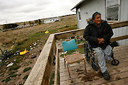 Lawrence Red Feathers, 59, who lost a led to diabetes, sits on the porch of his home at Pine Ridge Reservation.  American Indian men in the area of Rapid City, South Dakota have the lowest life expectancy of all people living in the the United States.