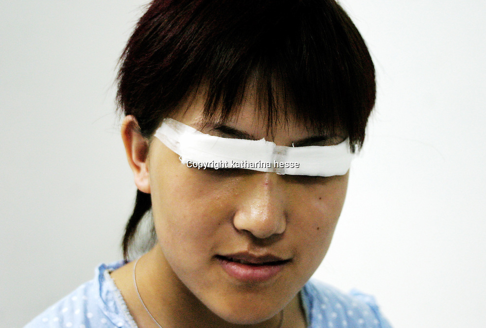 """BEIJING, 29.July 2004 :a teenage girl peeks out from under her bandages, one day after a double-lit eye surgery in doctor Shi Sanba's hospital in Beijing, July 29, 2004, in China. Plastic surgery is gradually is becoming big business in China's capital. Shi's hospital has been flooded with teenage patients ever since she started to offer """"special summer reductions"""" for students. Yang Yuan, the would-be model who'd  had plastic surgery and had sued the organizer a model contest after being banned from the contest, also was treated in Shi's hospital ...Whereas in Mao Zedong's China, even pigtails were seen as a sign of vanity (and had to be cut off) , nowadays, urban Chinese women seek about every means in order to distinguish themselves from the masses.  This year Beijing will organize the worl'd first beauty pageant for women had had plastic surgery..."""