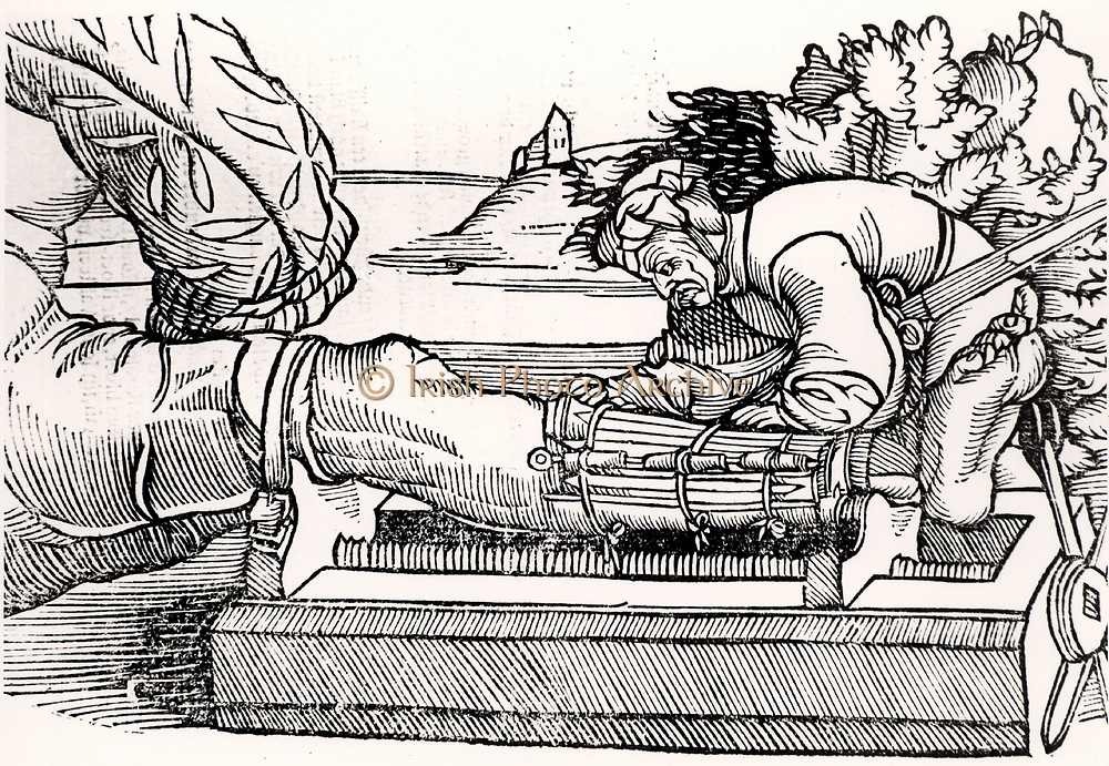 Setting a fractured leg.  Woodcut from 'Veldt Boeck van den Chirugia Scheel-Hans' by Hans van Gersdorff  (Amsterdam, 1593). A Dutch translation of Gersdorff's book first published in Strasbourg, 1517, and containing woodcuts from the original edition.