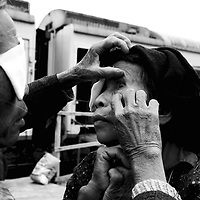 "CHONGZUO-APRIL 11:  an elderly woman has her eye inspected by a fellow farmer outside the ""Lifetime Express"" train April 11, 2004 in Chongzhou, Guangxi province, China. Guangxi is one of the poorest places in China with an annual income of USD 120-250 per year for peasants. Without Lifetime Express, a Hong Kong based Non Governmental Organization (NGO) that performs cataract surgeries for free, many people in rural areas would remain partly blind as the official fee for such surgeries in China about USD 600 is out of reach for all of them."