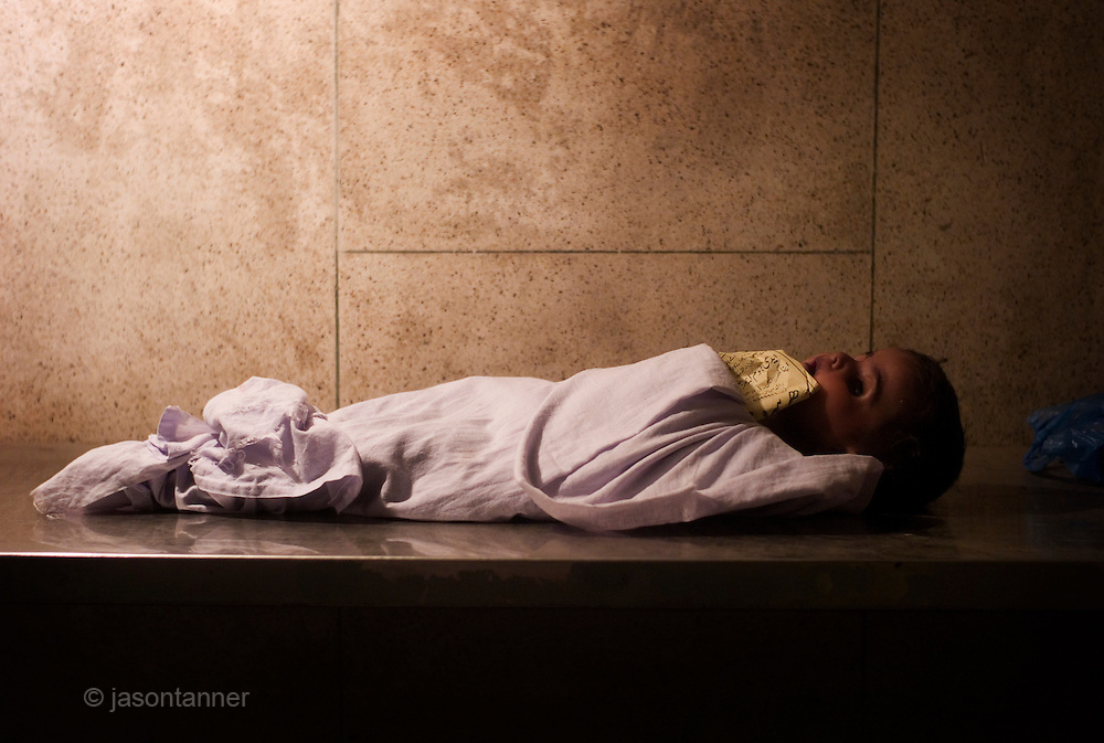 An unclaimed, and unidentified body of a young girl at an Edhi morgue facility in Karachi...The Edhi foundation morgue facility in Karachi sometimes receives around 30-50 deceased persons on a daily basis. the are kept in cold storage facilities for 3-4 days until they are either claimed by relatives of released for burial. Most are homeless or poor people whilst others victims of the many fatal road traffic accidents that occur in the city on a daily basis...In a country of some 160 million people, affordable medicines and diagnostic tests are beyond the reach of most people in Pakistan. The country suffers from shortage of doctors and government funded healthcare facilities; to many  on low income levels, basic health care is a luxury. The rich and middle class get the best treatment whilst the poor reply on the work of a welfare trust by the name Edhi Foundation. ..The Edhi foundation was established by Abdul Sattar Edhi. Born in a small Indian own of Bantva in the province of Gujrat he migrated to Pakistan during partition in 1947. After working as a commissioning agent selling cloth in a market in Karachi Abdul Sattar Edhi and other members of his community decided to establish a free dispensary in the city. Disillusionment with the lack of health care led him to establish a welfare trust of his own called the Abdul Sattar Edhi Foundation. Appeals were made, funds raised and soon a home was established and a number of ambulances patrolled the streets of Karachi...In 1965 Adbul married a nurse working at the foundation, Bilquis. They have four children and all are involved in the current day to day running of the foundation. Bilquis Edhi runs a maternity home at the headquarters in Karachi and organises the adoption of illegitimate children and abandoned babies. The family share the foundation's vision of a single minded devotion to the cause of alleviation of human sufferings and a sense of personal responsibility. The foundation responds for calls of help from