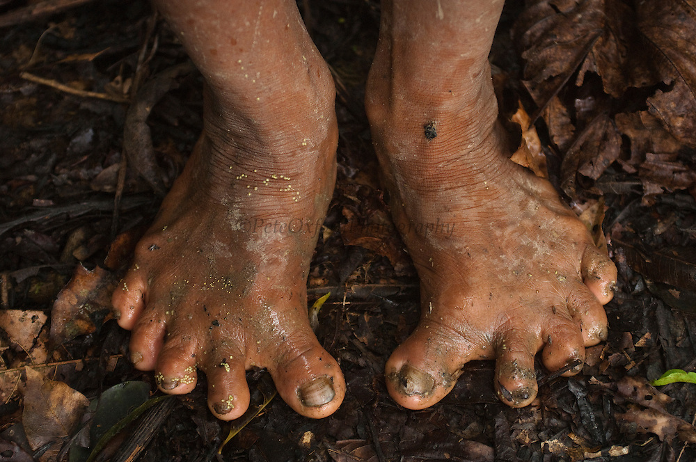 Huaorani Indian with splayed feet. Several of the Huaorani have these feet problems and there are some with 6 toes on each foot.<br /> Bameno Community. Yasuni National Park.<br /> Amazon rainforest, ECUADOR.  South America<br /> This Indian tribe were basically uncontacted until 1956 when missionaries from the Summer Institute of Linguistics made contact with them. However there are still some groups from the tribe that remain uncontacted.  They are known as the Tagaeri &amp; Taromenane. Traditionally these Indians were very hostile and killed many people who tried to enter into their territory. Their territory is in the Yasuni National Park which is now also being exploited for oil.