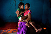 Aadite, 10, a disabled boy affected by microcephaly, cerebral palsy and malnutrition, is being held by his mother, Lakshmi, 30, while inside their home in Kabit Pura, near the Union Carbide (now DOW Chemical) industrial complex in Bhopal, central India. Aadite's father, Raju, a '1984 Gas Survivor', died in March 2013 at the age of 32 due to lungs failure. Because of his mother's need to act as the family's breadwinner, Aadite cannot attend the programs run by 'Chingari Trust Rehabilitation Centre', one of two vital medical institutions funded by 'The Bhopal Medical Appeal'. Lakshmi, 29, works six days a week as a cleaner, and Aadite is looked after by his two sisters Mayuri, 13, Mahag, 8, and his younger brother Anuj, 6. None of the siblings in this family are attending school or any kind of practical education.